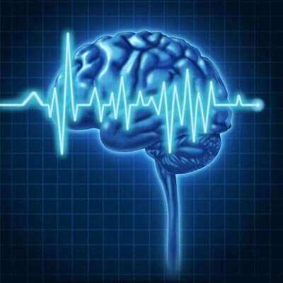 Laudo EEG